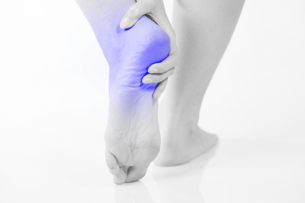 allsports-podiatry-conditions-PLANTAR-FASCIITIS-&-HEEL-SPURS-1000-x-667
